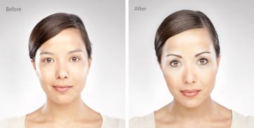 آرایش چهره و بازسازی طبیعی صورت بدون درد و خون ریزی (حتی کل بدن )