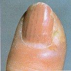 تیرگی ناخن ,بیماری ناخن,بیماریهای ناخن,سیاه شدن ناخن,پوسته پوسته شدن دور ناخن,ترک خوردن ناخن,حفره روی ناخن,زرد یا سبز شدن ناخن ,شکنندگی ناخن ,لکههای سفید روی ناخن