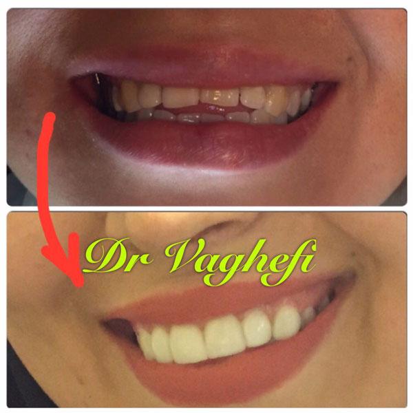 لیست دندانپزشک زیبایی در کرج