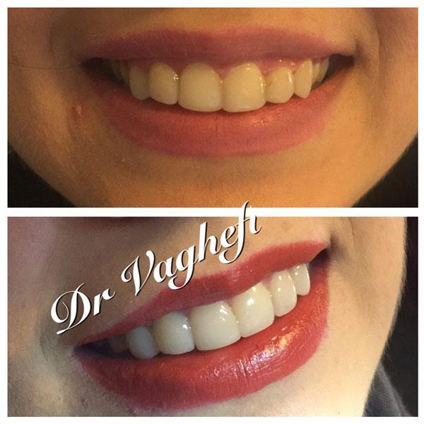 دندانپزشکی زیبایی در کرج