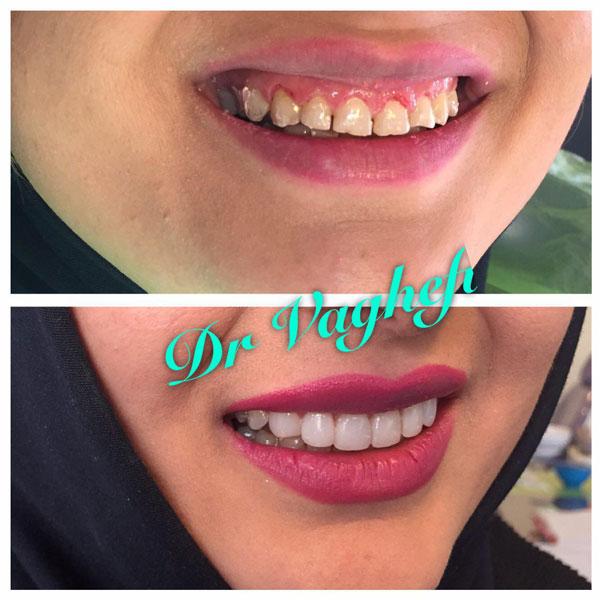 دندانپزشک زیبایی خوب در کرج