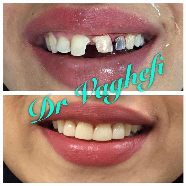 بهترین دندانپزشک زیبایی در کرج