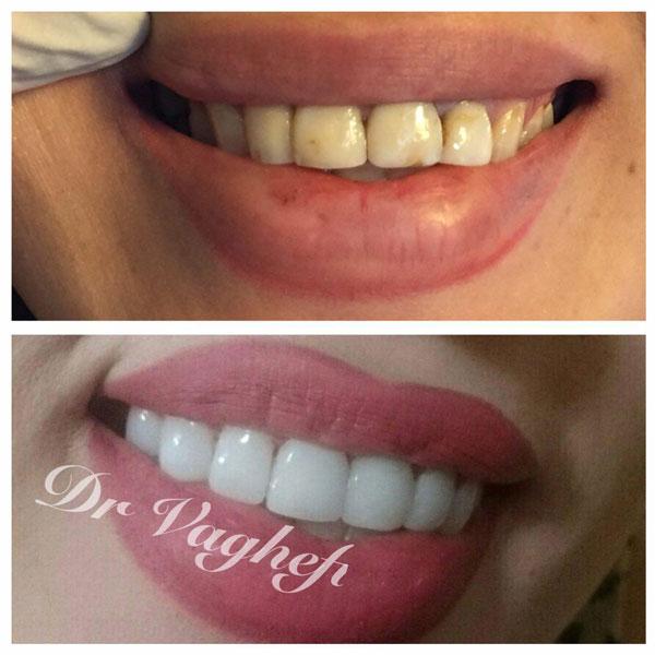 دندان پزشک زیبایی کرج