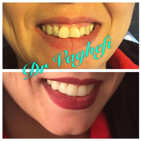 بهترین دندانپزشکی زیبایی در کرج