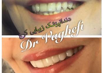 دندانپزشک زیبایی کرج (دکتر واقفی)